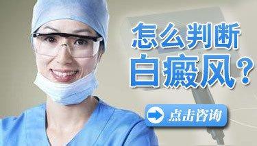武汉白癜风诊断方法都有什么?