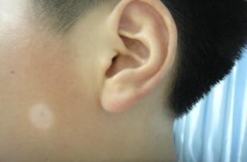 武汉儿童如何预防白癜风