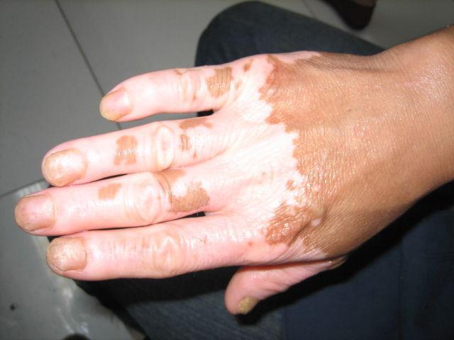 白斑面积大小会影响治疗效果吗