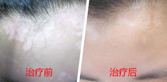 武汉怎么注意治疗颈部白斑