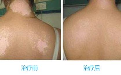 武汉儿童白癜风的早期症状有哪些