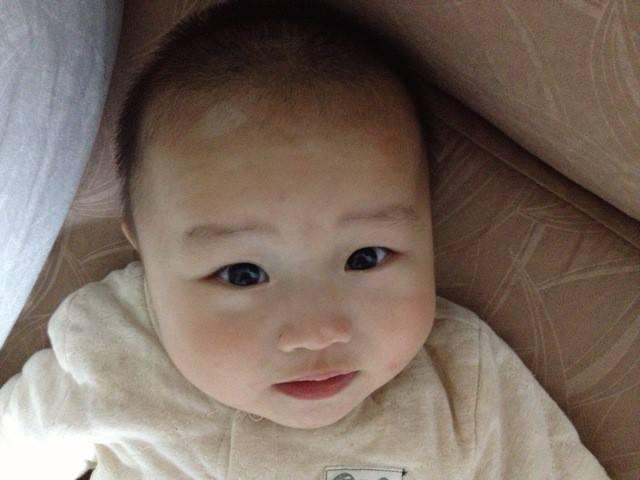 武汉儿童白癜风白斑怎么治能治好?