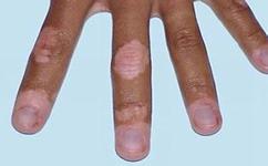 手部白癜风的常见原因是什么